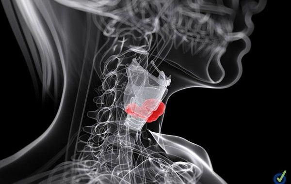 Enfermedad Profesional: El cáncer de laringe por inhalación de amianto