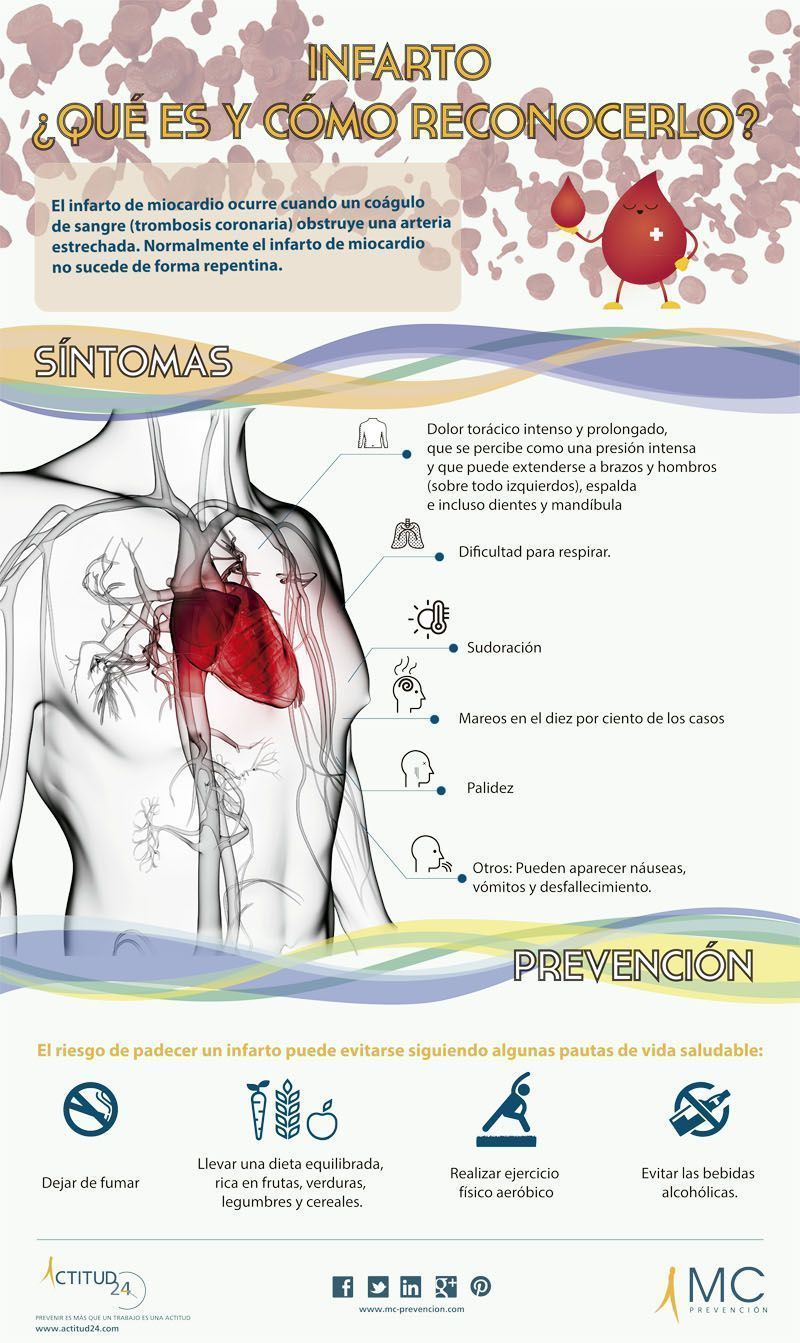 Infografia Infarto