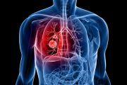 ¿Debería el cáncer de pulmón por exposición al sílice debería considerarse enfermedad profesional?