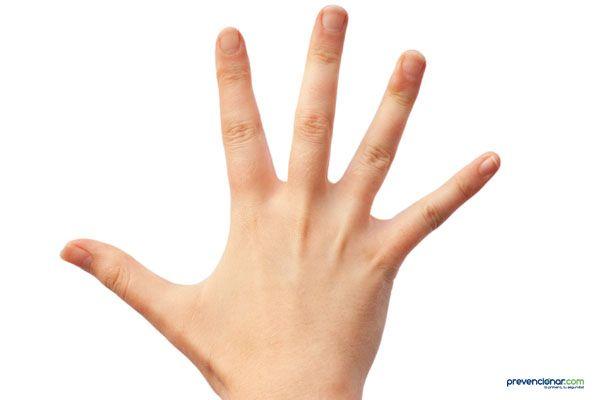 Sentencia: 18.000 euros por dedo perdido