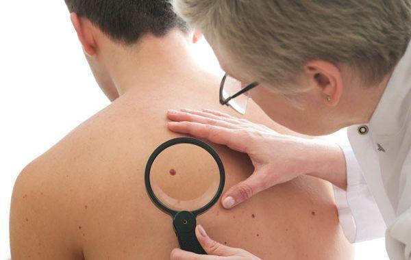 Enfermedades profesionales de la piel