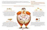 Obesidad y trabajo
