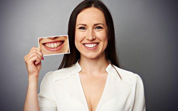 ¿ Sabias que el estrés puede acabar con tu dentadura ?