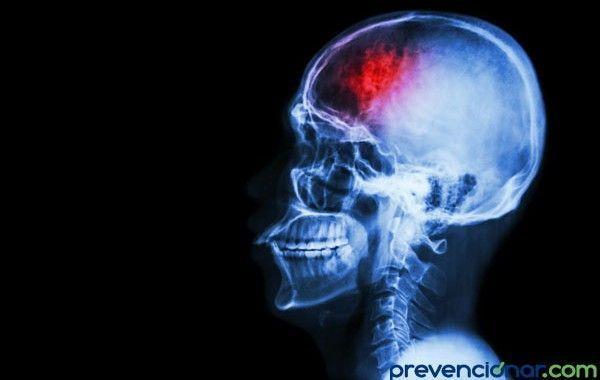 El estrés podría aumentar el riesgo de accidente cerebrovascular