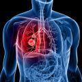 cancer pulmón