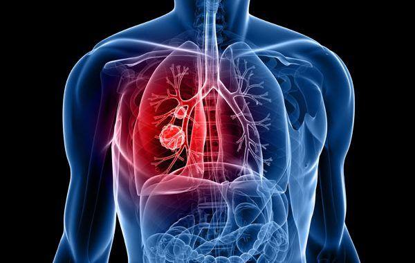 Nueva investigación sobre la rehabilitación y la reincorporación al trabajo después del cáncer