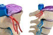 BSH reduce un 12 % las lesiones musculares gracias a su plan de salud