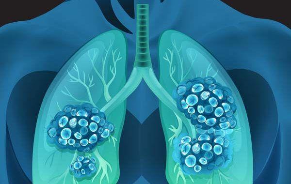 Nueva enfermedad profesional: el cáncer de pulmón por inhalación de sílice