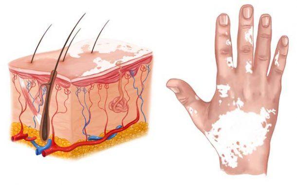 Guía sobre la dermatosis profesional en la construcción