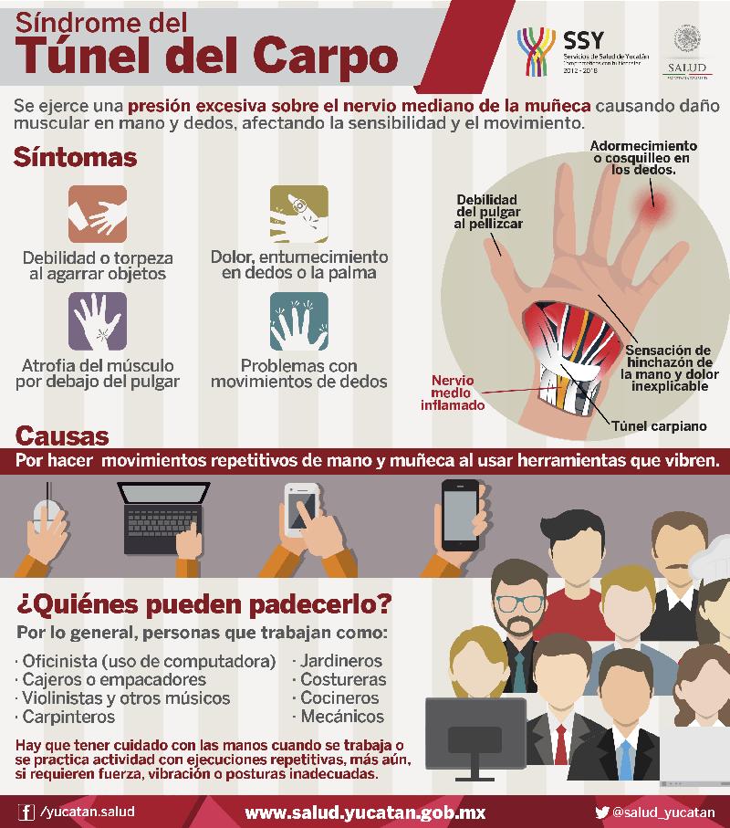 Infografía: Síndrome del túnel carpiano