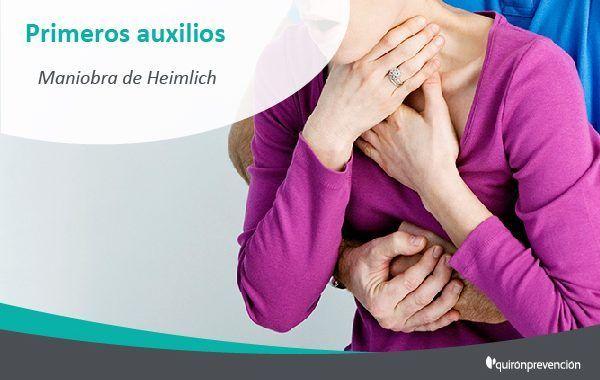 Maniobra de Heimlich ¿sabrías como aplicarla?