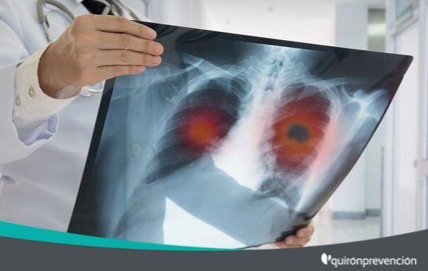 Cáncer de pulmón de origen laboral
