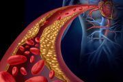 Guía para el manejo coordinado de trabajadores con cáncer y riesgo cardiovascular