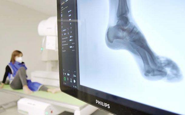 Asepeyo instala un equipo de radiología, pionero en el mundo, que ofrece más comodidad y seguridad al paciente